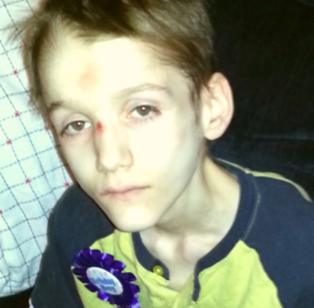 Teen starved and covered in ulcers at time of death, says forensic